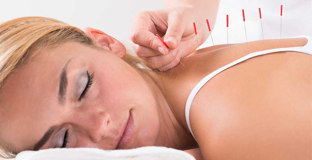 Relaxing Acupuncture
